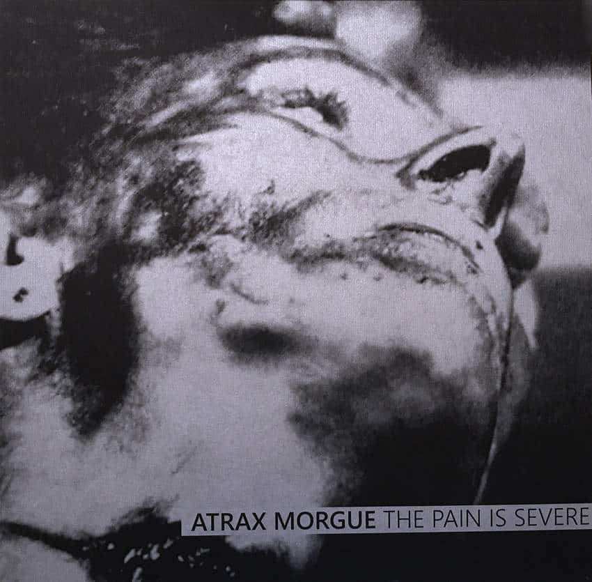 The Pain Is Severe by Atrax Morgue